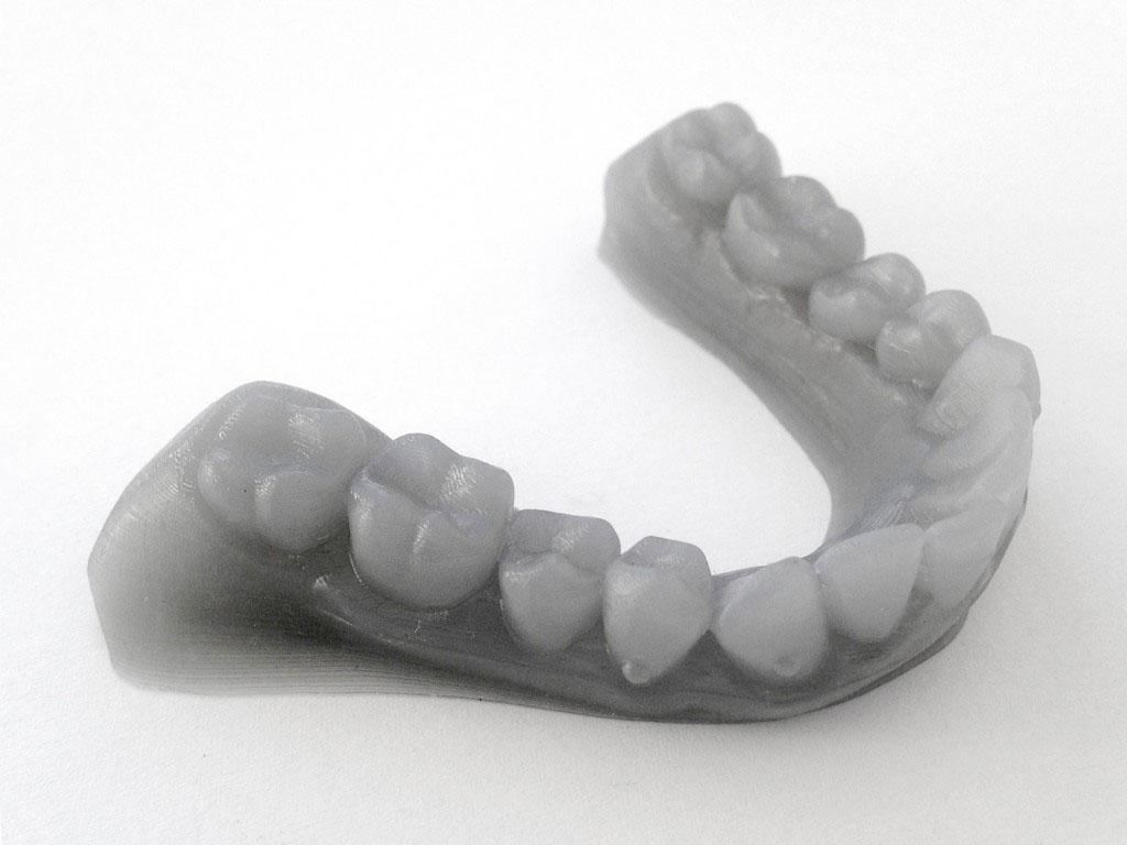 3D tlač chrup zuby